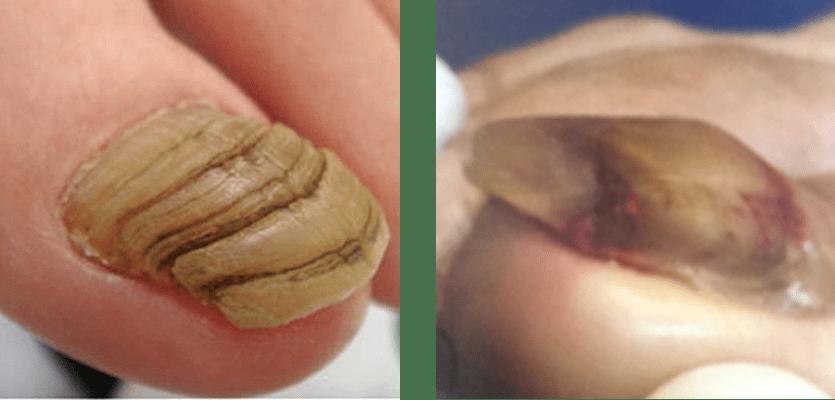 変形爪(爪甲こう湾症)・ネイルリストア
