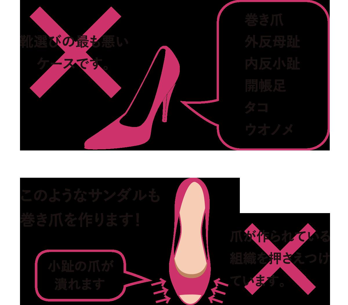 正しい靴選び